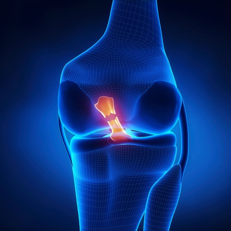 Identifying and Rehabbing an Anterior Cruciate Ligament Injury