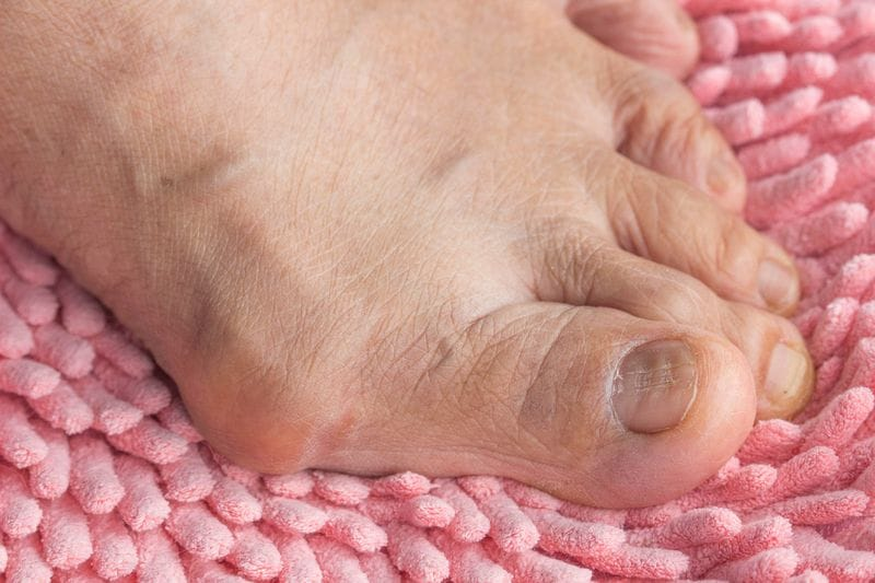 What's A Bunion and Why Should I Care?