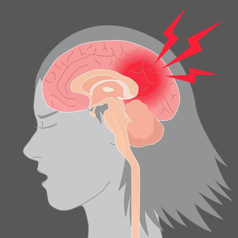 Post-Concussion Syndrome: Management for Adults