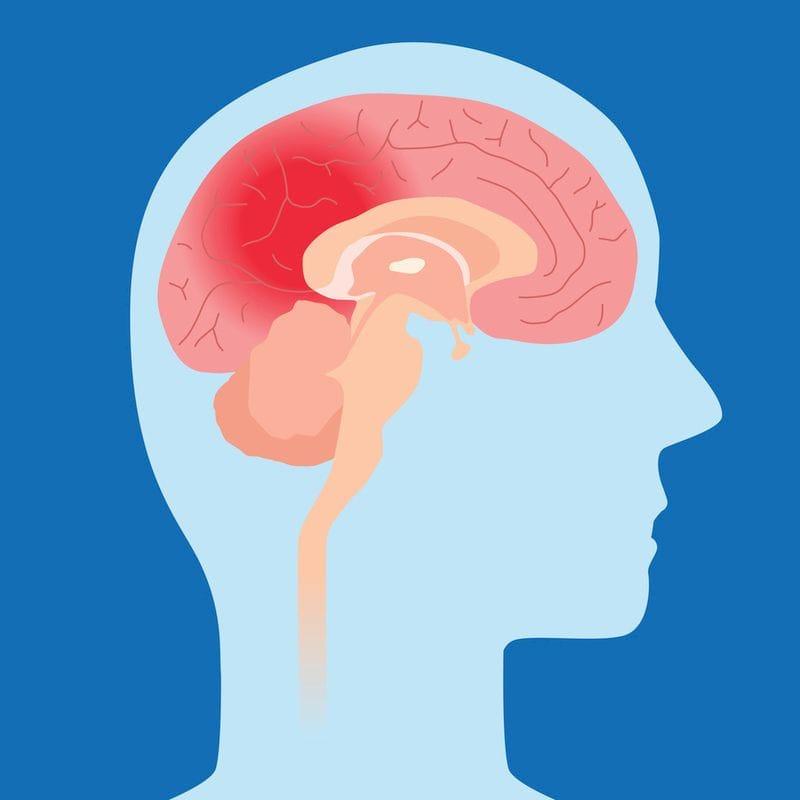Introducing SEMI's Concussion Program!