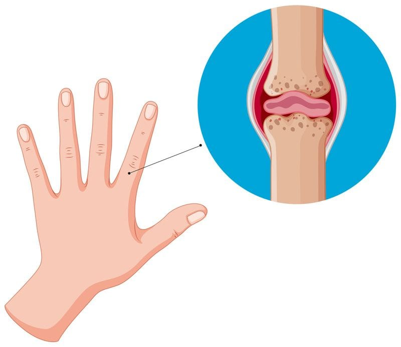 Can Stem Cell Injection Therapy Prevent Arthritis Pain?
