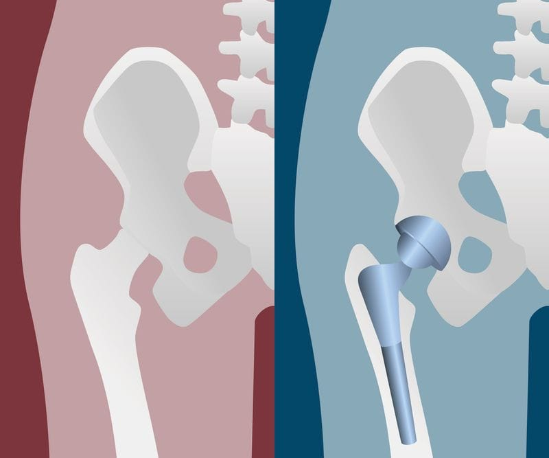 Do I Have to Get Hip Replacement Surgery?