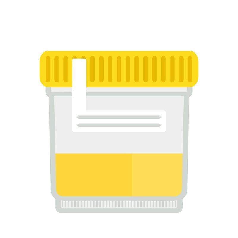PRP (Pee R Pee?): The Power of Urine Derived Stem Cells