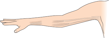 3 Things to Improve Axillary Web Syndrome