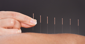 Acupuncture for Chemotherapy-Induced Peripheral Neuropathy