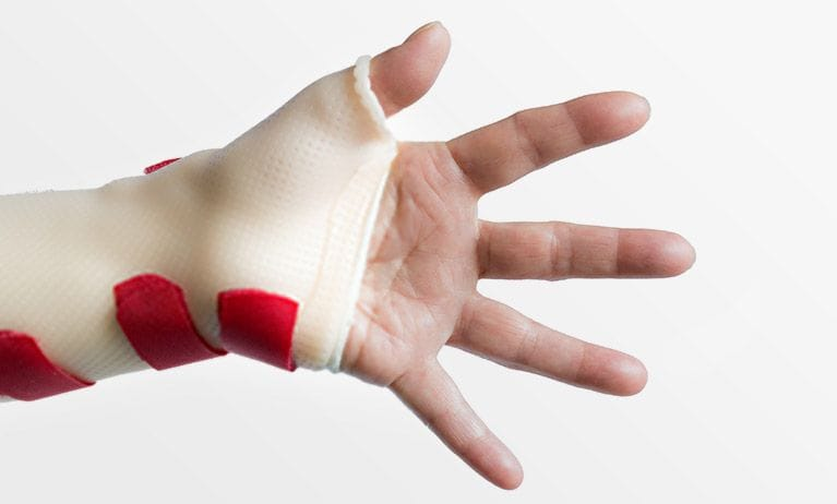 Custom hand and wrist splints | Orthobility Bracing