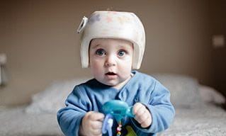 Custom-made pediatric helmets for plagiocephaly  | Orthobility Bracing