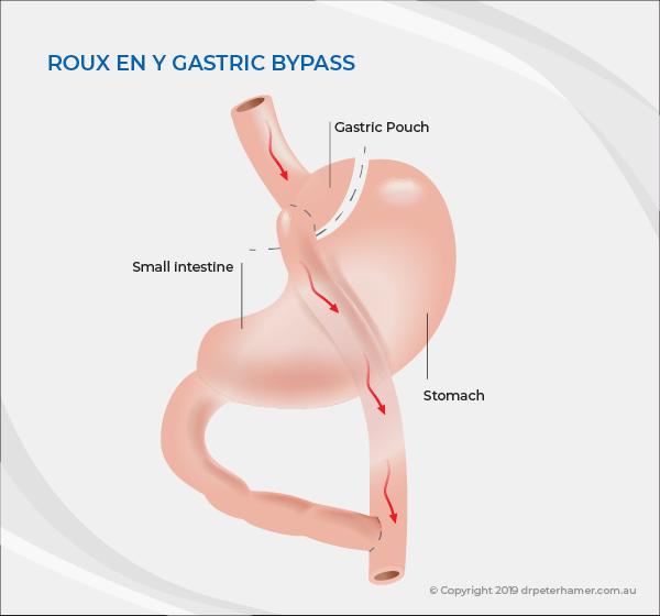 Gastric bypass   Dr Peter Hamer
