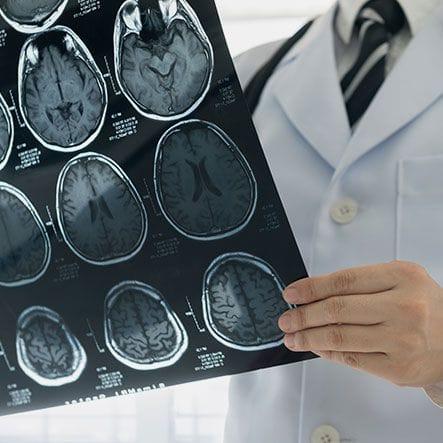 Perth Neurology & Epilepsy | Dr Athanasios Gaitatzis | Neurology Specialist