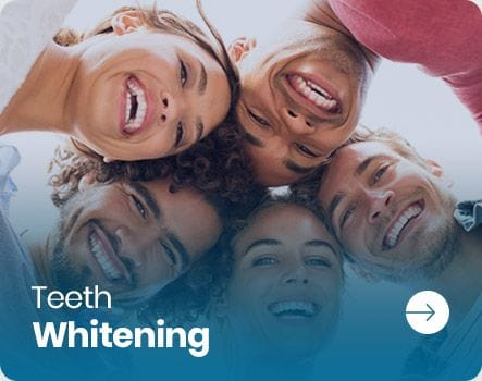 Teeth Whitening in Salisbury | Paralowie | Elizabeth South | Elizabeth Vale | Parafield Gardens | Brahma Lodge | Salisbury Park | Salisbury North | Salisbury Plain | Salisbury South | Salisbury Downs | Northern Adelaide SA